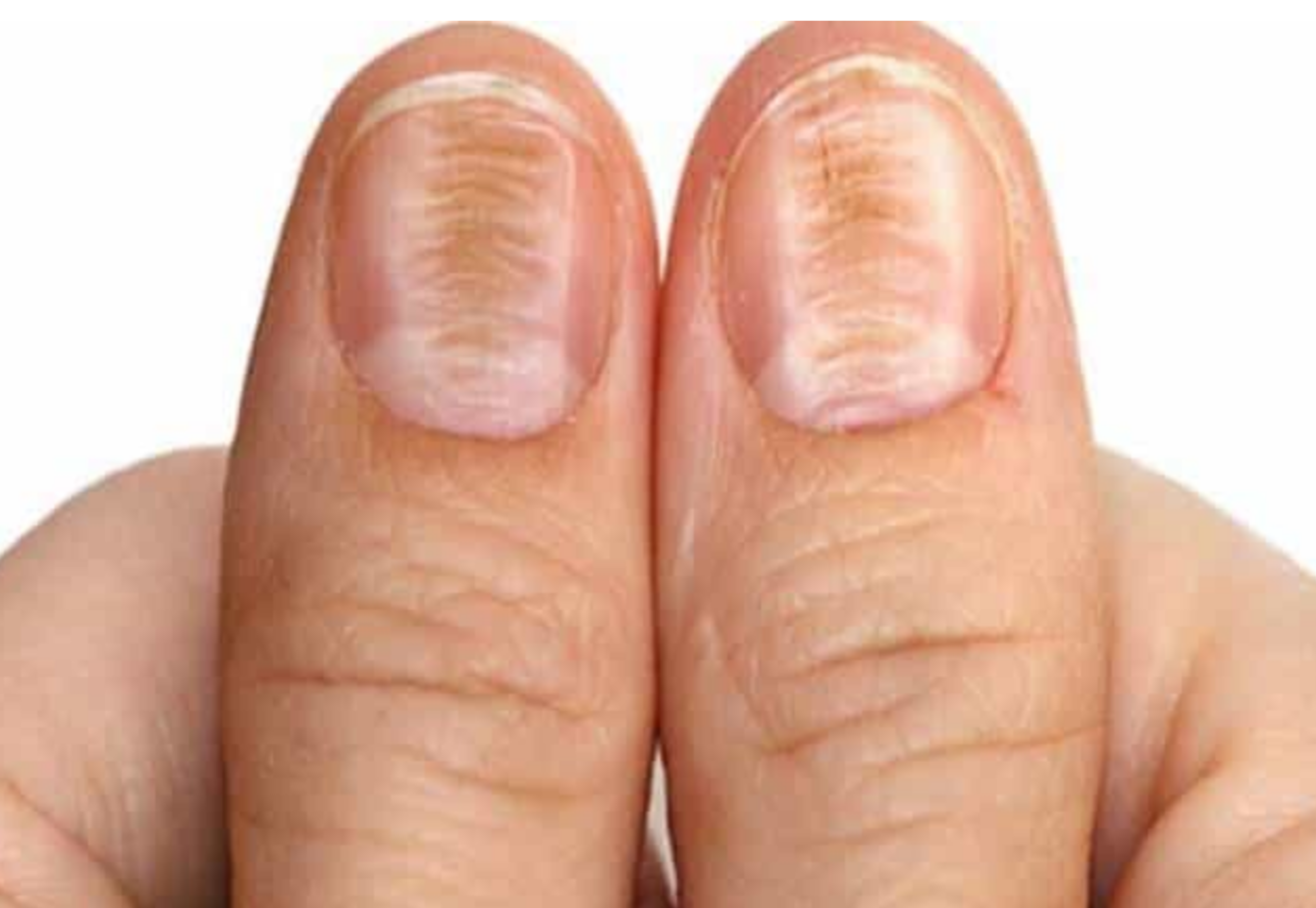 Vertical Ridges on Nails Vitamin Deficiency