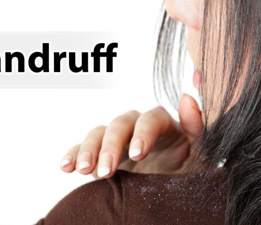skin dandruff on body