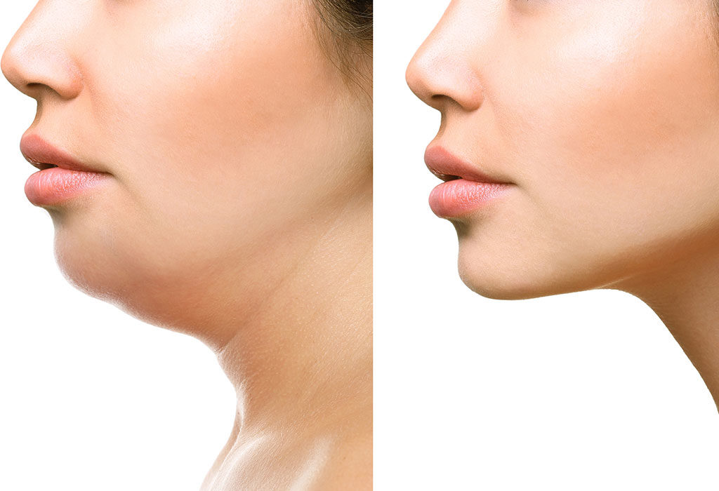 howto Lose Face Fat in A Day